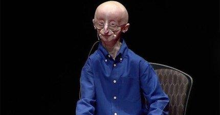 這位罹患超稀有疾病的年輕人知道自己快要死了,因此他決定把快樂的秘密透露給全世界。