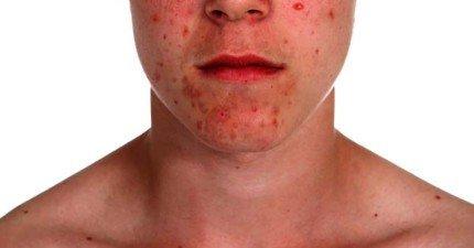7種你可能常吃但不知道會傷害皮膚的食物。