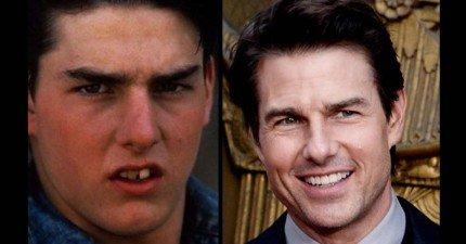 14位戴過牙套的國際巨星會讓你看到整齊的牙齒可以讓你好看10倍!