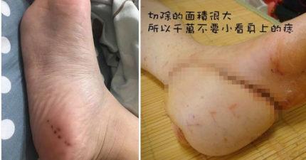 媽媽腳上出現「連線衛星痣」,醫生瞥一眼立刻轉到大醫院「切除後腳跟10cm」再切大腿肉補上!(照片慎入)