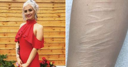 19歲女孩想用刺青掩蓋「痛苦黑暗的過去」,所有刺青師都拒絕除了一位