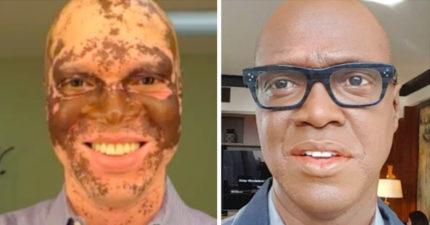 黑人男子25年來每天在臉上化妝遮掩白斑「才不會被FIRE掉」,唯有這時候勇敢露出最真實自我:比以前更帥!