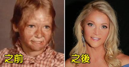 她10歲被火「燒掉70%美麗」 現在變身「超正選美小姐」網震驚:真正的浴火鳳凰!