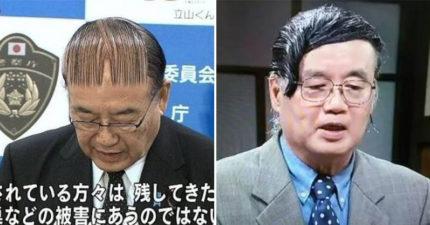日本公眾人物的「WTF髮型教科書」網笑瘋 頭上「只有三根毛」堅持旁分!