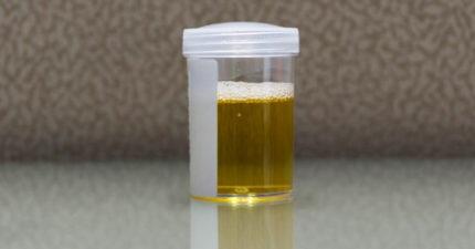 她只喝水卻「尿出酒精」被罵酗酒!醫檢查驚:膀胱自帶「酒精釀造」功能