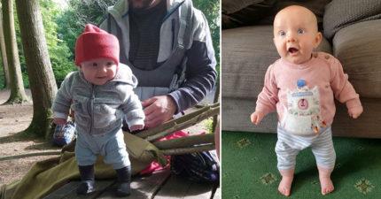 最強寶寶「出生2個月就會站」 專家警告:未來會彎掉
